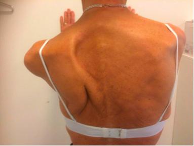 Figur 1. Scapula alata efter mastektomi for brystkræft på ve. side.